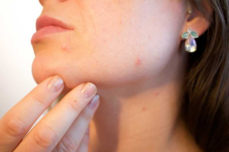 acne behandeling vergoeding