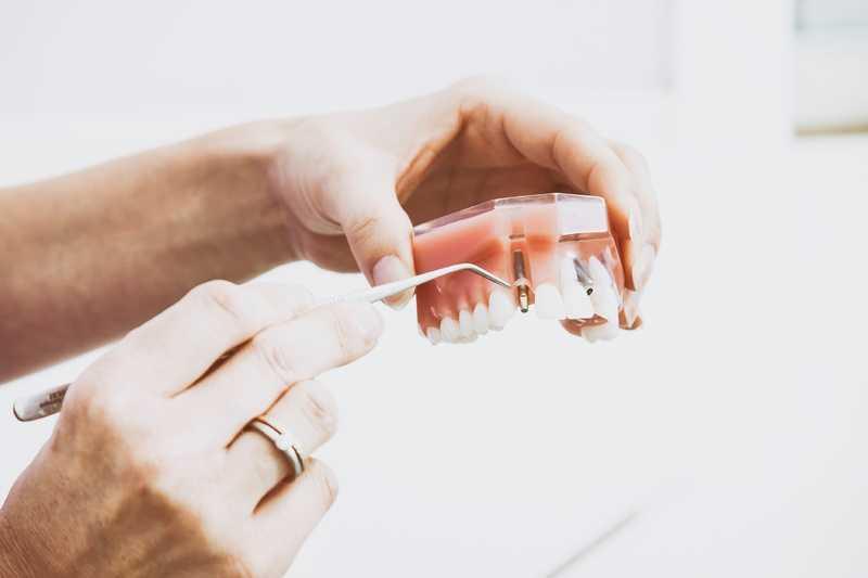 orthodontie vergoeding