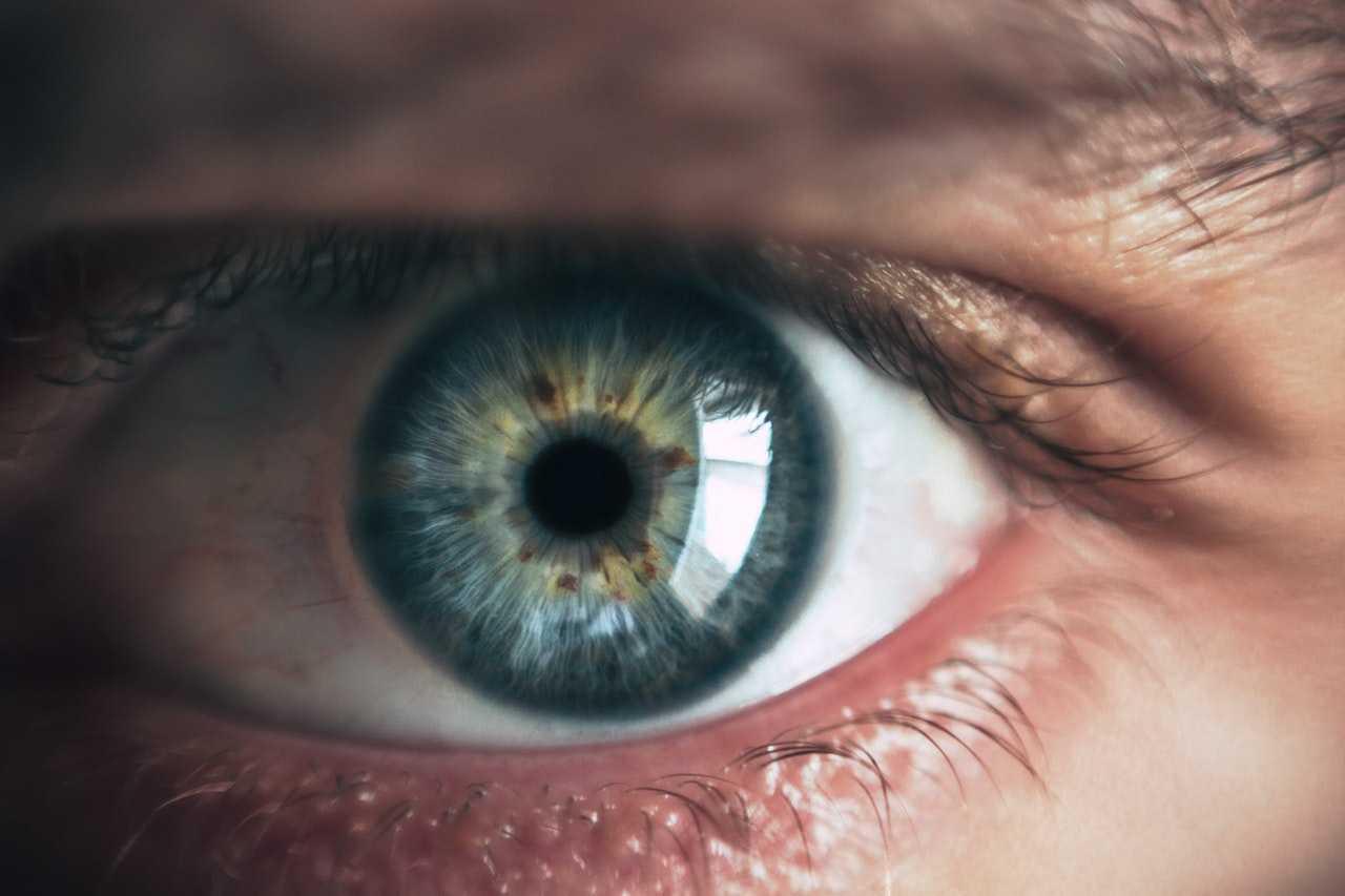 ogen laseren vergoed